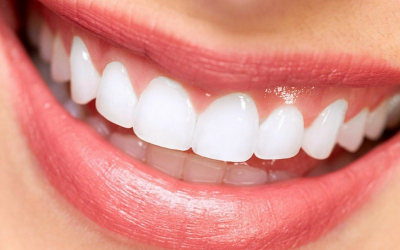Las carillas dentales son un tratamiento sencillo y duradero