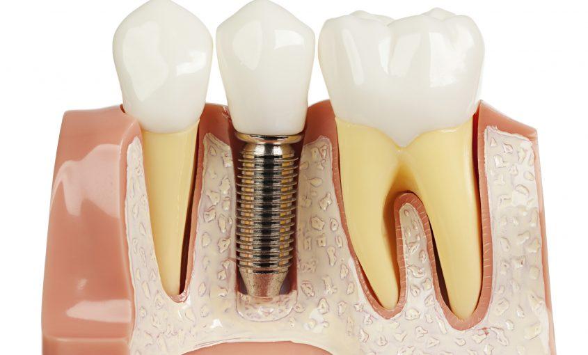 problemas por implantes dentales