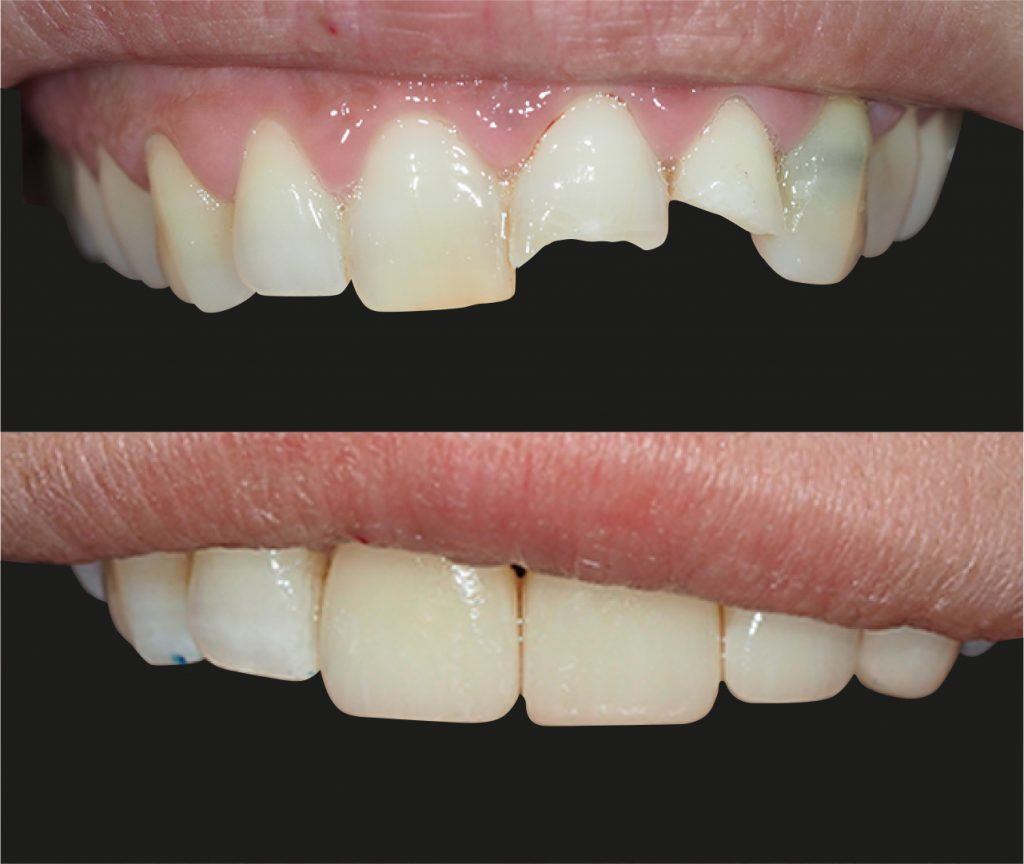 diente roto carillas cerámicas