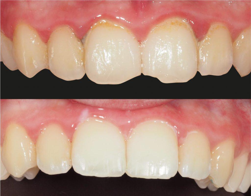 manchas en los dientes carillas dentales blanqueamiento