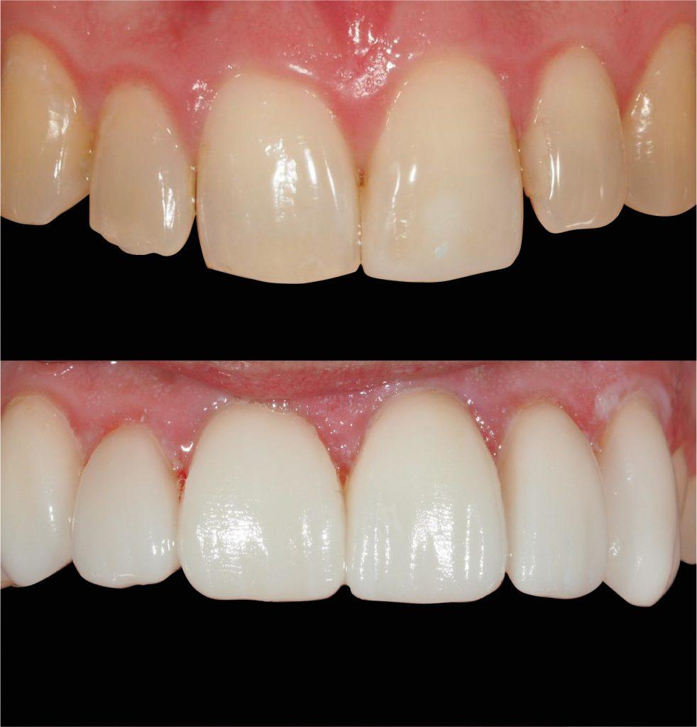 dientes torcidos carillas dentales