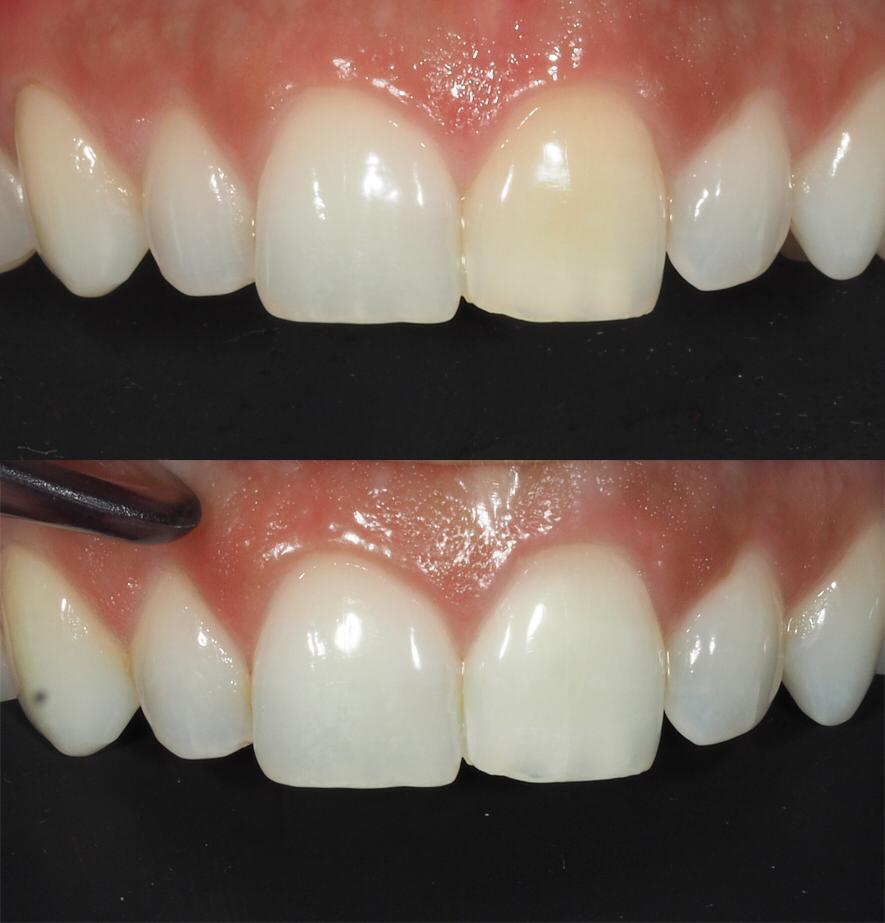 blanqueamiento dental estética dental