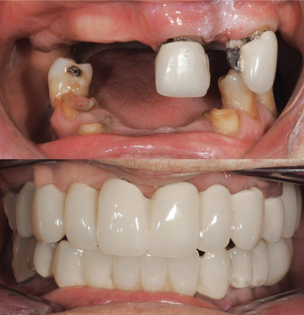Reconstrucción de dentadura en paciente de 93 años