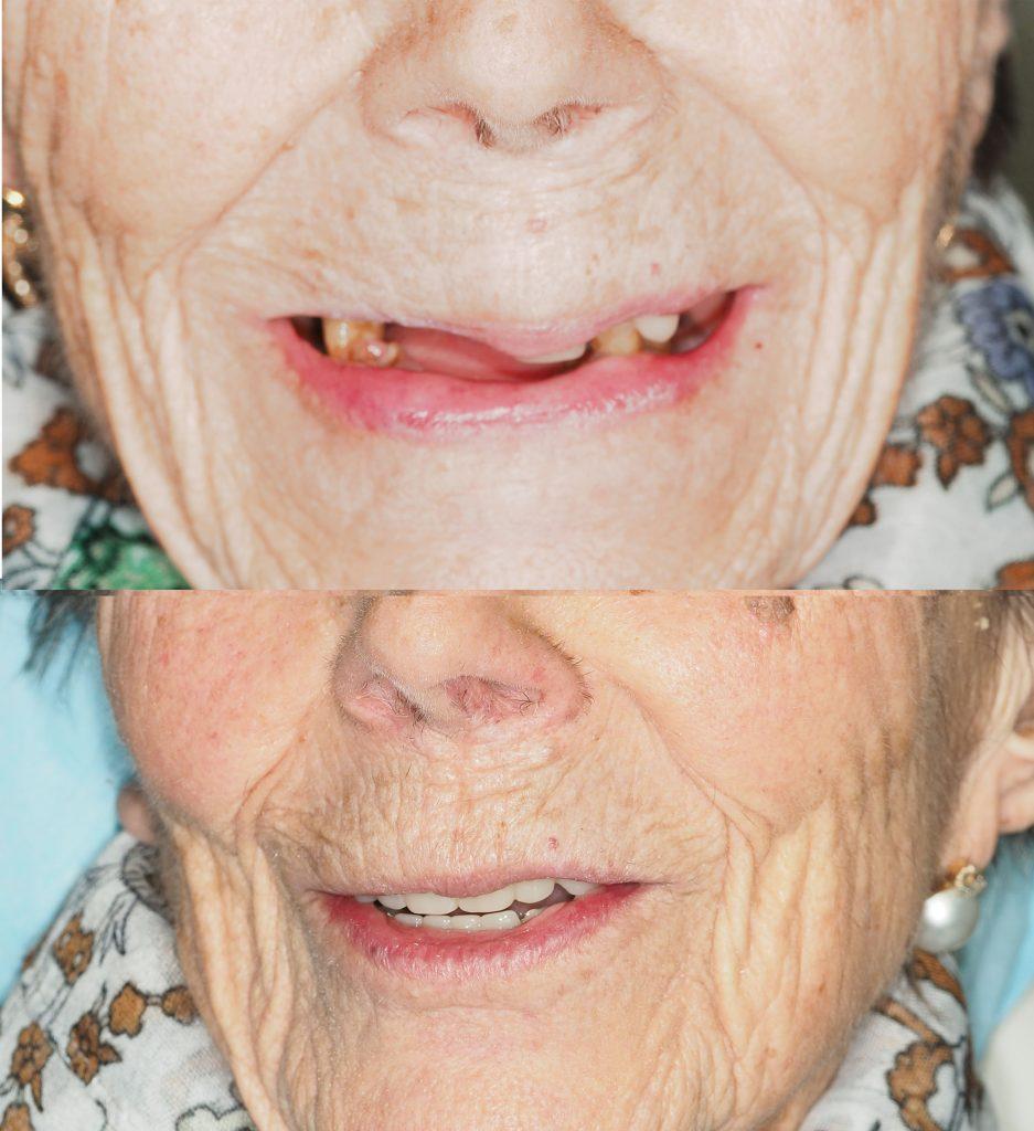 tratamiento de implantes en paciente de 93 años