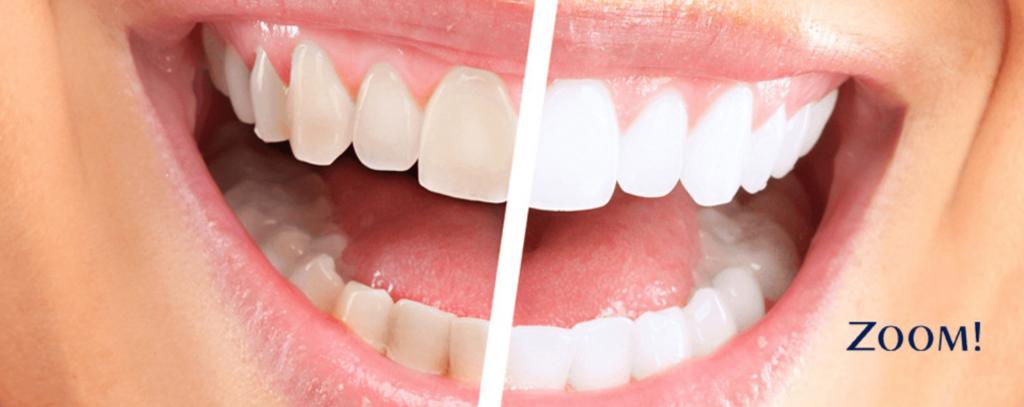 blanqueamiento dental Zoom de Philipps