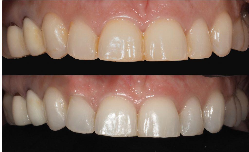 antes y despues blanqueamiento dental en clinica